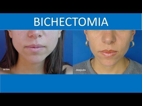 Bichectomia Para tener un rostro más delgado | Cirugia para los cachetes