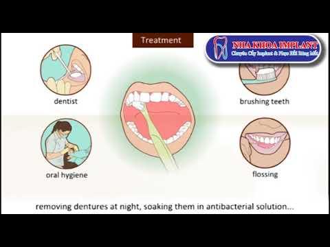 Nha Khoa Implant - Bệnh hôi miệng và những nguyên nhân gây ra