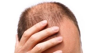 ACV & Cayenne Hair Growth Experiment
