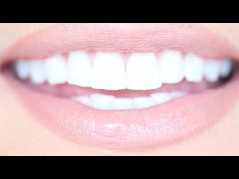 Whiteneing of Teeth