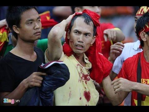 CỔ ĐỘNG VIÊN VIỆT NAM BỊ ĐÁNH ĐẬP TÀN NHẪN TẠI MALAYSIA