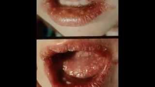 treatment herpes simplex 2 quart casserole dish