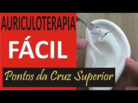 Auriculoterapia Fácil - Curso de Acupuntura Auricular