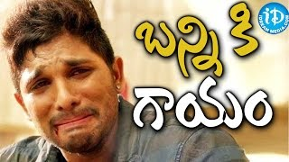 Allu Arjun injured on the sets of 'Sarainodu'