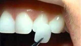 تلبيس الأسنان & تبييض الأسنان
