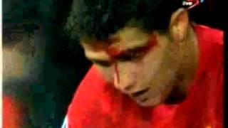Cristiano Ronaldo Es Golpiado Y Sangra