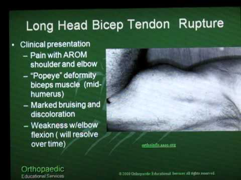 Long Head Biceps Tendon Rupture