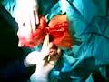Cirugia De Mioma Uterino 3
