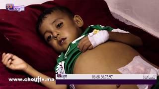 بالفيديو..طفل يعاني من التشمع الكبدي بتاوريرت و الأب يناشد القلوب الرحيمة   حالة خاصة