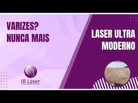 Tratamento de varizes a laser