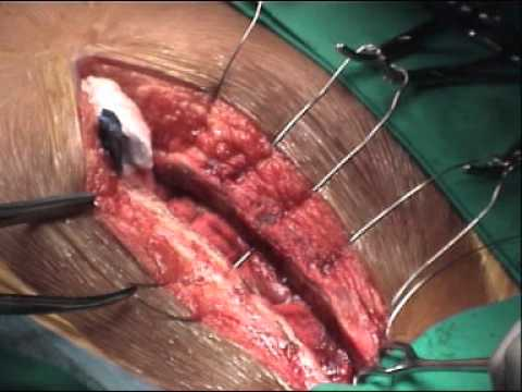 dradnan h rcheid open heart surgery youtube
