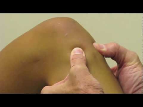 ACL Exam Lachman's Test, Pivot Shift, Drawer Test performed by Dr. Eric Janssen