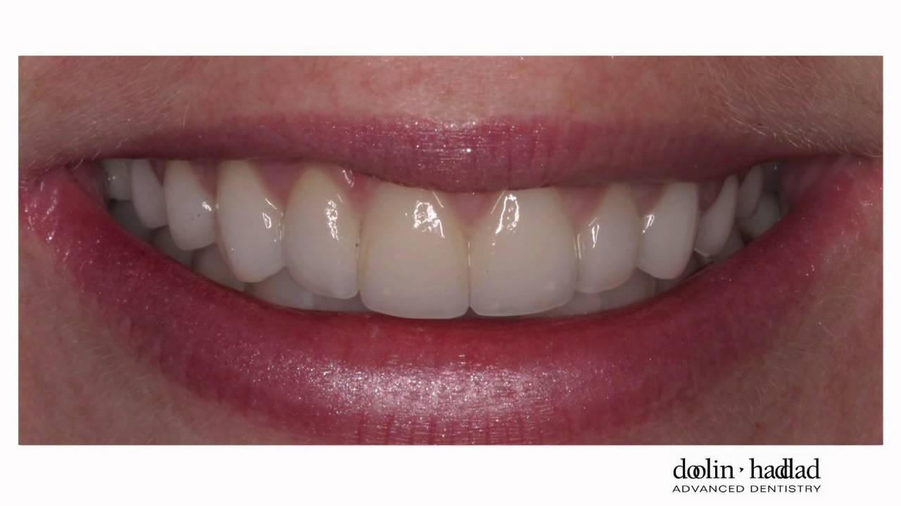Quot My Porcelain Veneers Are So Natural Looking I Love Them
