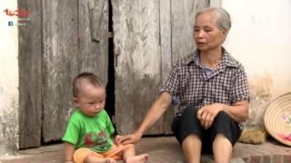 Tiếp sức hồi sinh - Số 186 - Hoàn cảnh Nguyễn Vũ Đức Văn | TodayTV