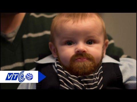 Kỳ lạ bé trai mới 1 tuổi đã dậy thì | VTC