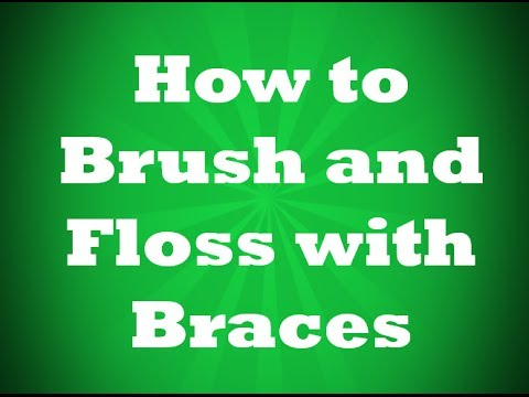 GittessBraces.com - How to Brush and Floss With Braces