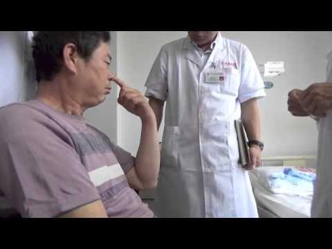 Zhu's Scalp Acupuncture benefits cerebellar stroke instantly