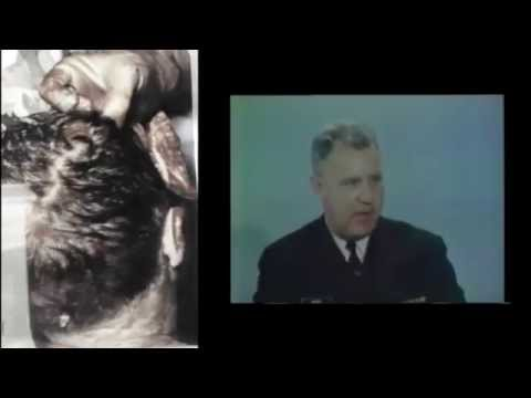 WARNING GRAPHIC EXCLUSIVE JFK's Animated Autopsy Photo's