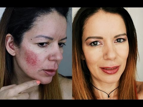 Rosacea/Acné Foundation Make Up Routine. Rutina de Maquillaje y Cuidado.