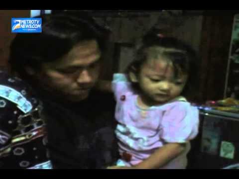 Bocah Empat Tahun Diduga Menderita Penyakit Aneh