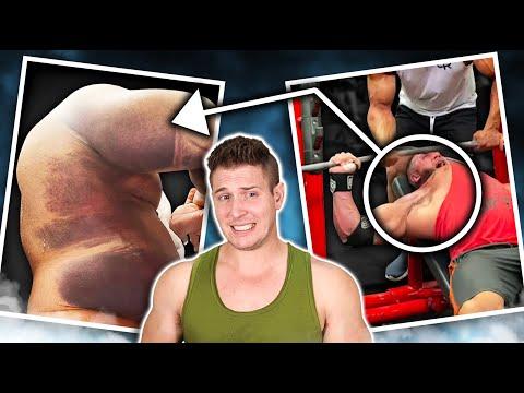 """Reacting To Ryan Crowley's Grewsome """"Pec & Biceps Tear"""" Benching 5 Plates    CAREER ENDING INJURY?"""