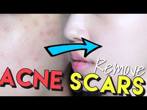 how to get rid of hyperpigmentation acne