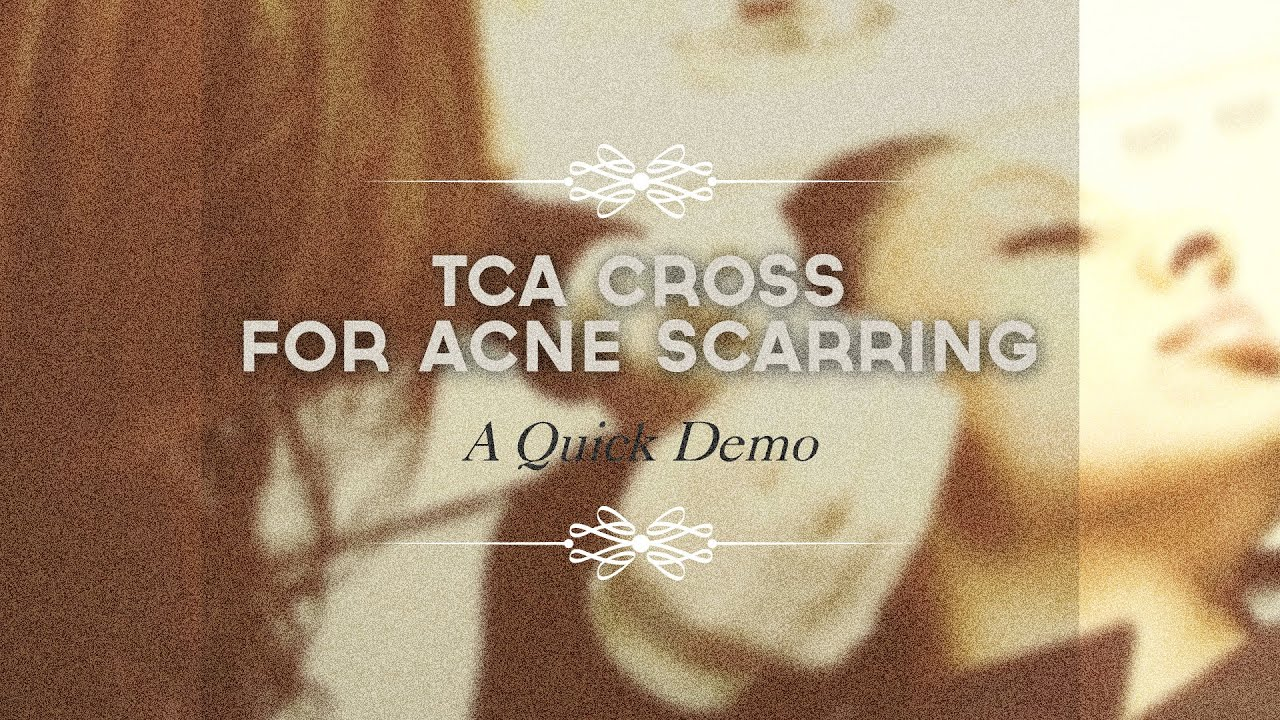 Effective way to improve your pitted scars: TCA cross method