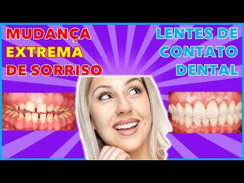 Curso de Odontologia Estetica Curitiba p Dentista Curitiba - Facetas e lentes de contato dental