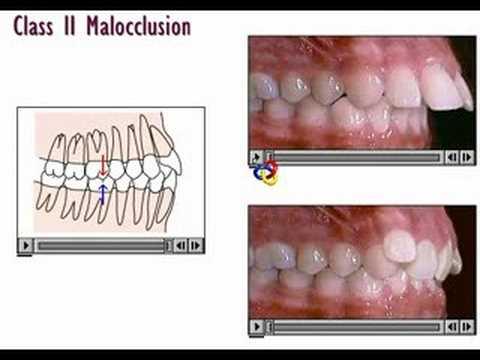 clase II ortodoncia
