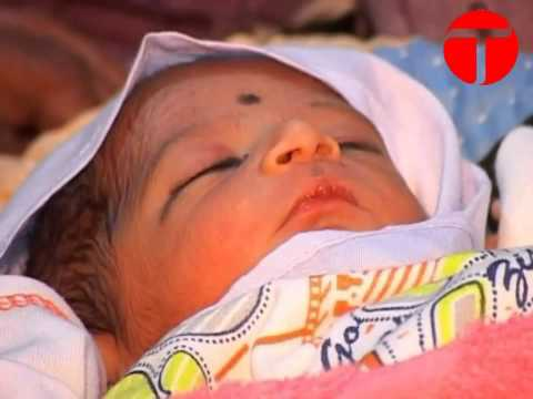 A Six (6) Legs Baby Boy Born in Pakistan