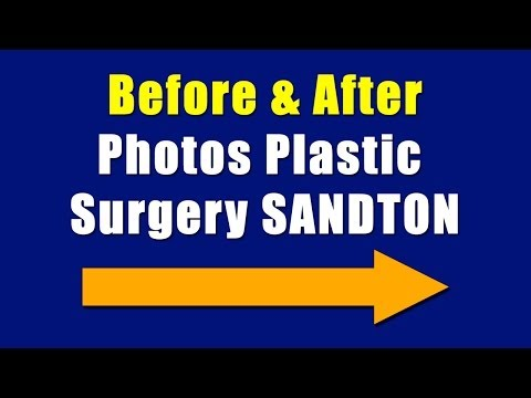 Pretoria Cosmetic Surgery Sandton Call Number Below For Info