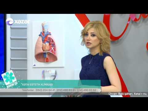 29 05 2017 Hekim ishi Xetai Estetik Klinikasi Cerrah Fleboloq Mehemmed Efendiyeva