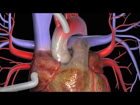 Cirurgia de revascularização do miocárdio (CRM)