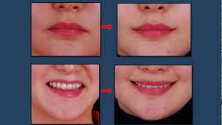 Korean Plastic Surgery: Perma-Smile Lip Lift