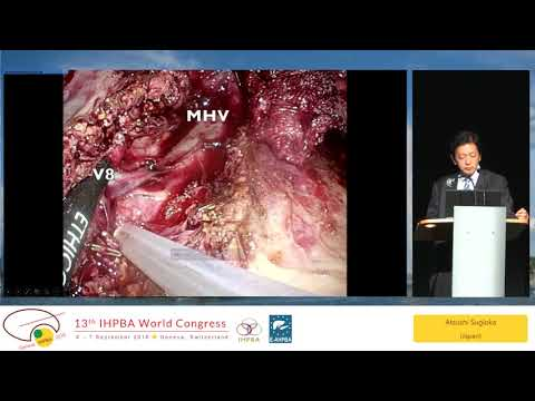 MTP09.1 Robotic Liver Surgery