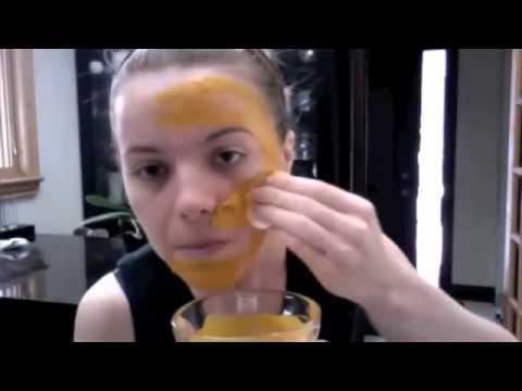 mặt nạ nghệ làm trắng da, trị mụn trứng cá và làm mờ sẹo