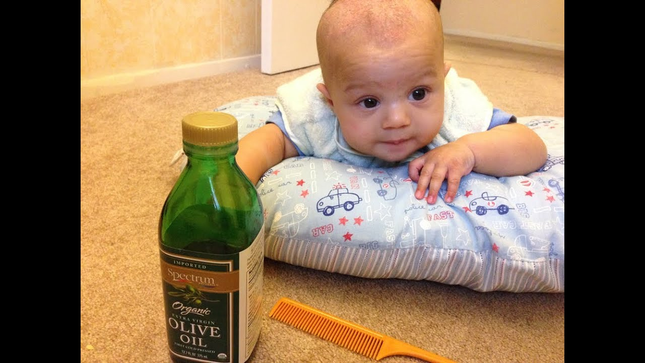 How To Get Rid Of Cradle Cap Youtube