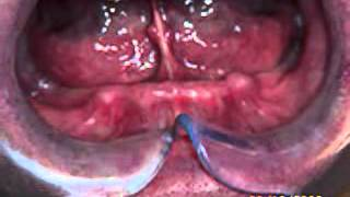 [dentist lady lake] Video