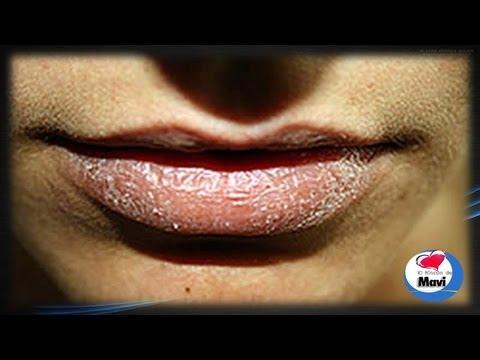 Consejos de belleza para labios resecos - Mascarilla casera para los labios agrietados