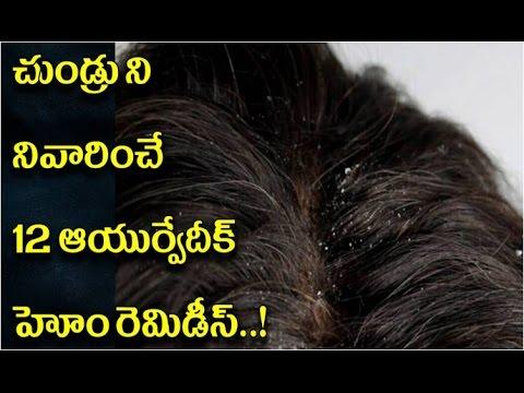 చుండ్రు నివారణకు 12 ఆయుర్వేదిక్ హోం రెమెడీస్   12 Ayurvedic medicine for dandruff free hair