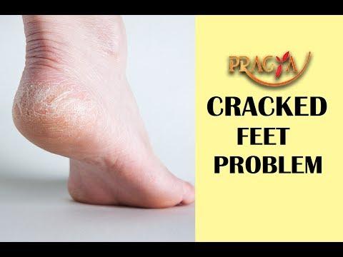 Cracked Heels Treatment | Dr. DM Mahajan (Dermatologist)