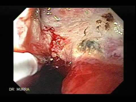 Endoscopy of Giant Ulcer of the Stomach