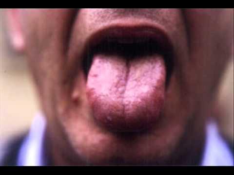 La lengua