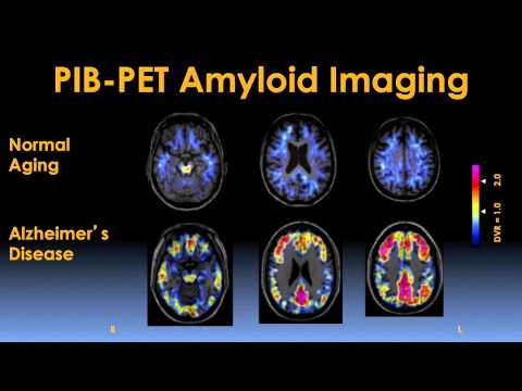 Early Detection and Prevention of Alzheimer's Disease Video -- Brigham and Women's Hospital