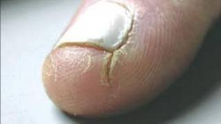 DermTV How To Heal Cracked Fingertips [DermTV.com Epi