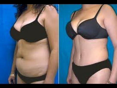Adelgaza Zonas Difíciles con LECITINA DE SOYA / Soy Lecithin for Weight Loss