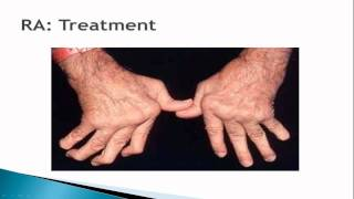 YouTube Video: Rheumatoid Arthritis: An Overview
