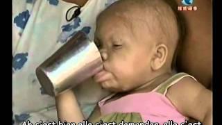 Femme De 28 Ans Dans Un Corps De Bebe