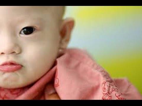 Người mẹ mang thai hộ muốn giữ lại em bé mắc bệnh Down