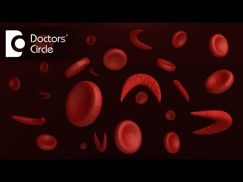 What is management of Anisocytosis Hypochromic Anemia?-Dr. Surekha Tiwari